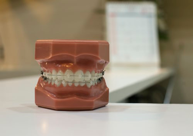 A photo of a dental model showing the placement of teeth with the use of braces.